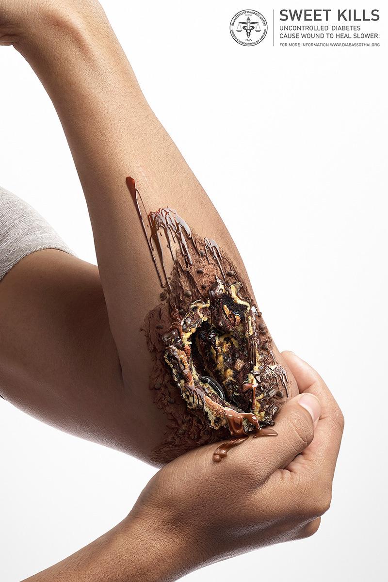 Fushata përmes vizatimeve tregon per problemet nga konsumi i tepert i sheqerit foto 3
