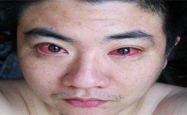 Këtë e bëjmë të gjithë çdo natë, por këtij personi ia shkaktoi kancerin në sy...