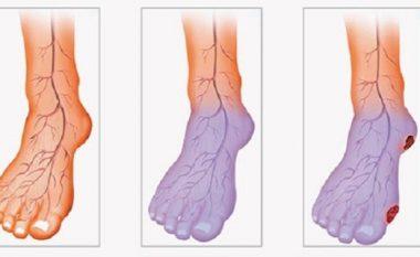 Qarkullim të dobët të gjakut, këmbë dhe duar të ftohta? Ja si ta zgjidhni këtë problem