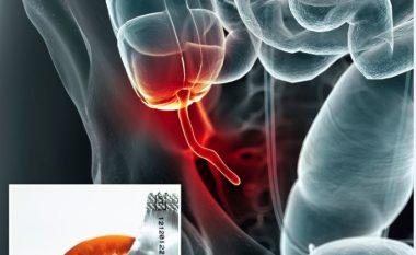 Ankohej se kishte dhimbje të mëdha në bark, mjekët i gjejnë prezervativ në apendicit (Foto)