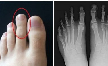 Nëse e keni gishtin e dytë më të gjatë se të madhin, jeni në rrezik!!!