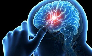 Këto janë gjërat që duhet t'i bëni për të parandaluar sulmin në tru