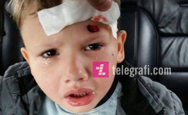 Babai akuzon kujdestarët e çerdhes për lëndimin e të birit (Foto)