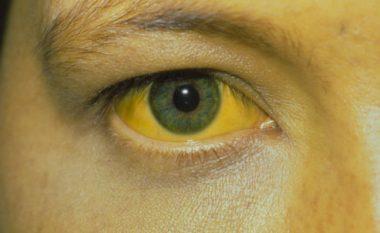 Simptomat dhe shenjat e Hepatitit C