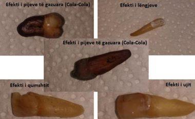 Ky është efekti i ujit, qumështit, lëngjeve dhe pijeve të gazuara tek dhëmbët (foto, video)