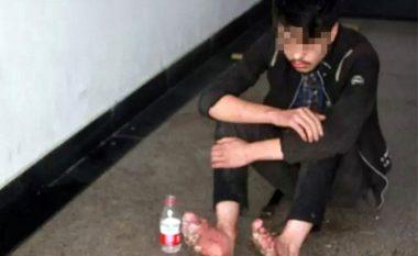 E tmerrshme çfarë i ndodhi djaloshit që luajti 6 ditë lojëra online (Foto)
