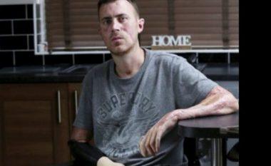 Shkon në spital me grip kthehet me një dorë dhe pa këmbë (Foto)