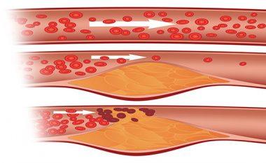 Ilaçi më i mirë kundër kolesterolit dhe shtypjes së lartë të gjakut