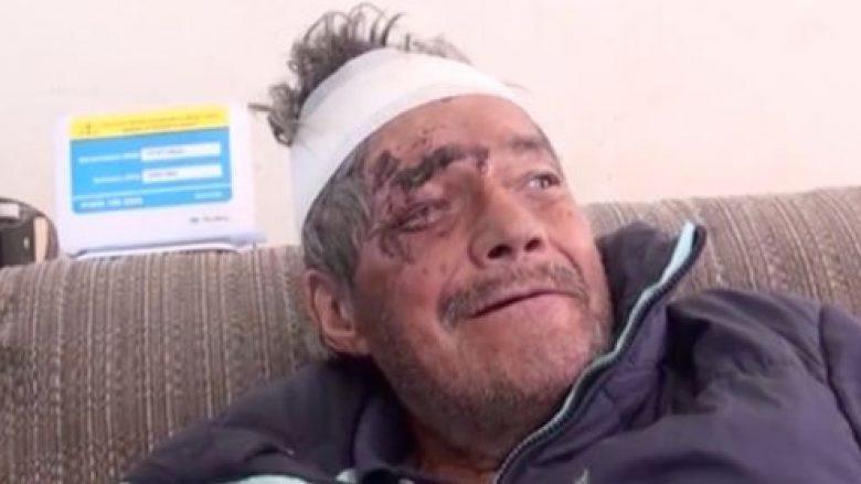 Pasi u shpall i vdekur dhe hiri i trupit të djegur iu dorëzua familjes, burri shfaqet para dyerve të shtëpisë (Foto/Video)