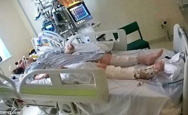 Do i hiqnin aparaturën që e mbante në jetë, studentja në koma lëviz gishtin (Foto)