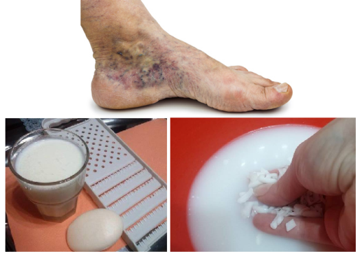 Magical-Recipe-for-Varicose-Veins-and-Thrombosis-with-Only-Two-Simple-Ingredients
